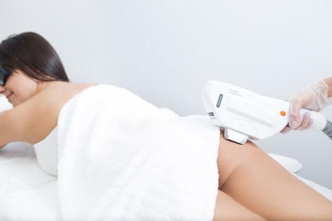 Dauerhafte Haarentfernung Am Po Mit Lasershripl